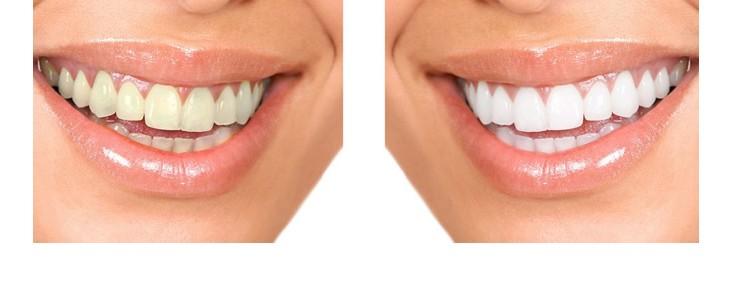 FUN but REAL: Bílé zuby jsou hezčí než světlešedé - totéž platí pro svorkovnice